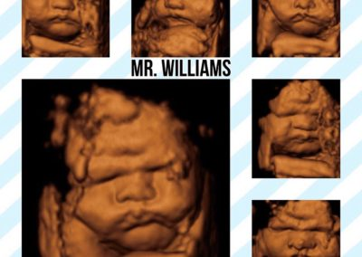 Prenatal Sneak Peek, 3D 4D Ultrasound provides elective 3D ultrasounds to residents in Baltimore County, Harford County, and Cecil County Maryland.